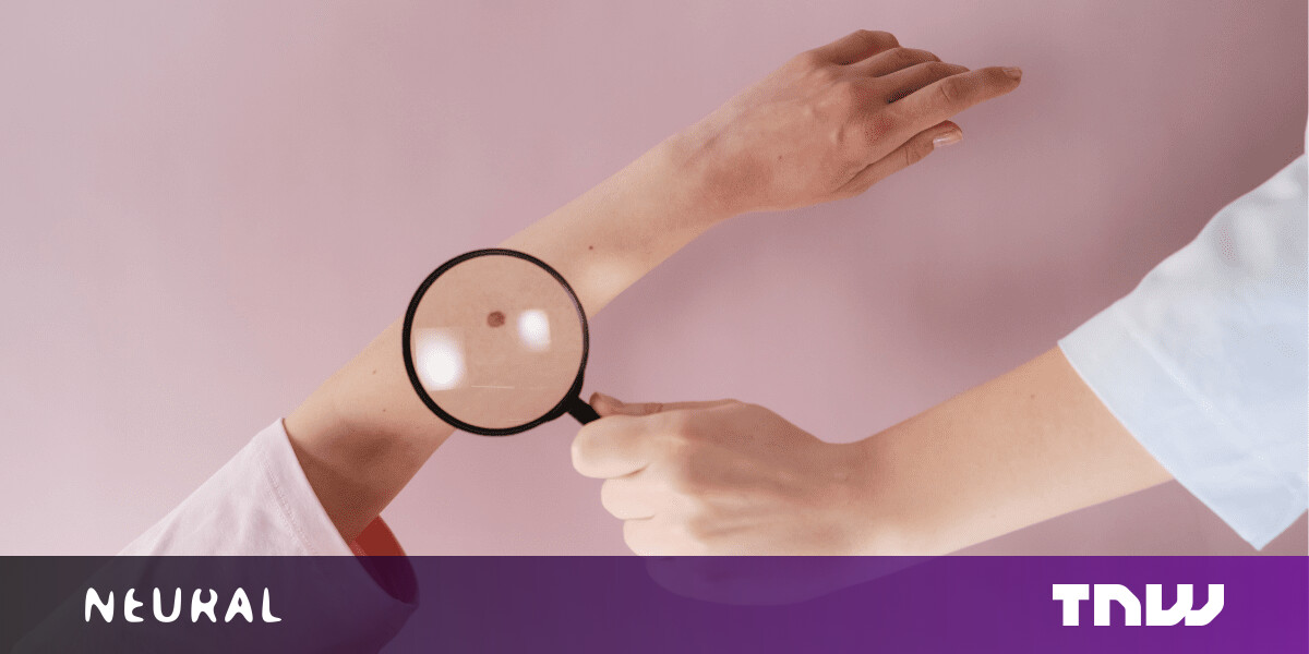This 'AI doctor' can assess skin melanoma as accurately as human dermatologists