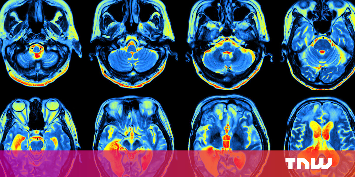 Science can't explain consciousness — but panpsychism might crack the mystery