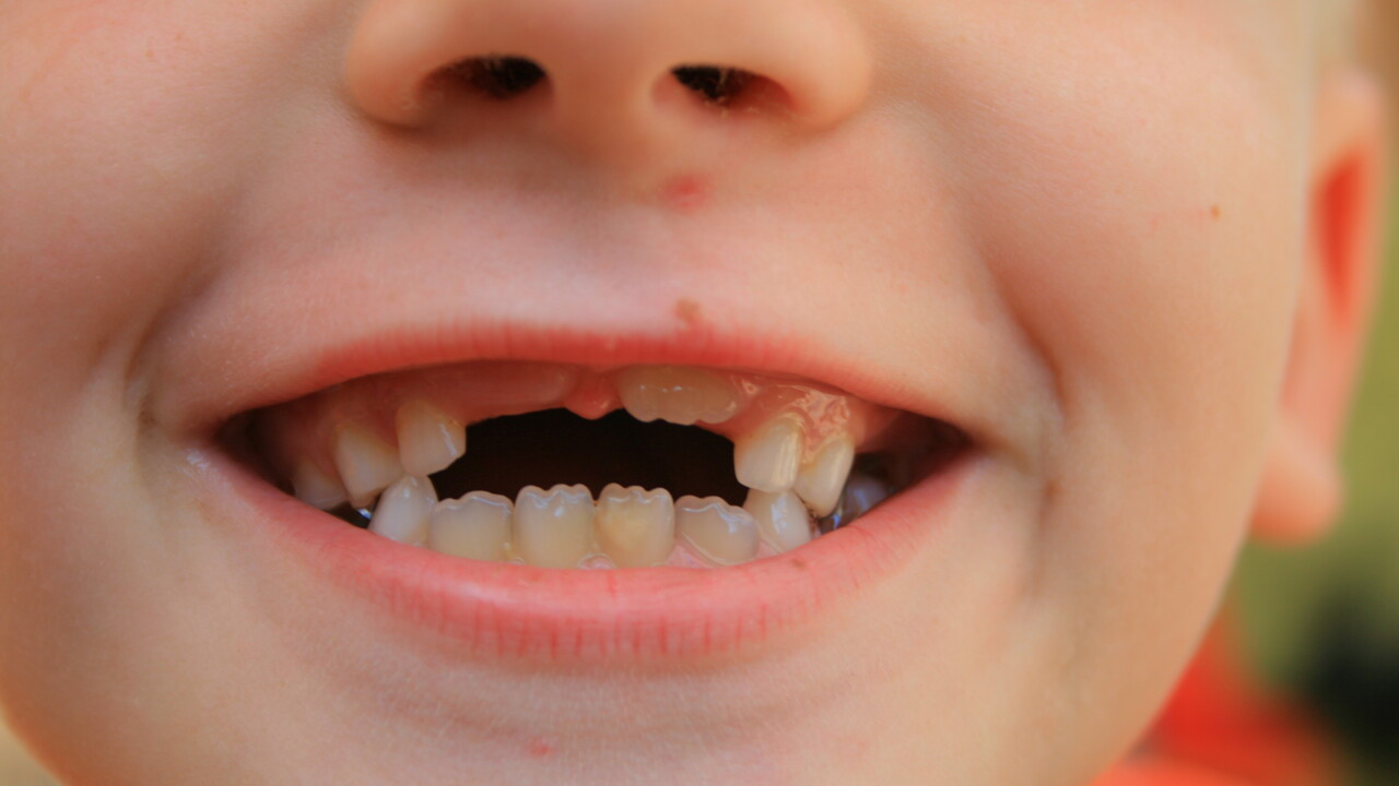This guy built a machine to transport his kids' teeth straight to the tooth fairy