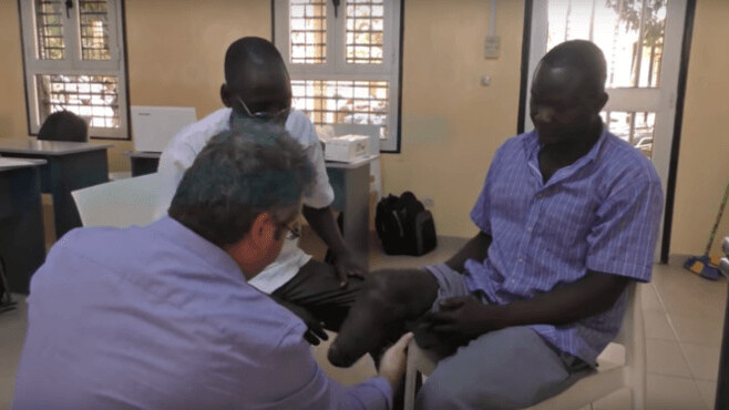 3D printing will bring artificial limbs to patients in Madagascar and Togo