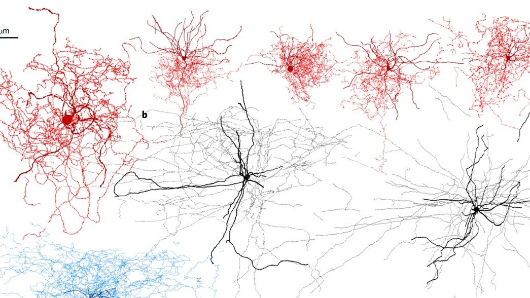 Brain cell discovery could help scientists understand consciousness
