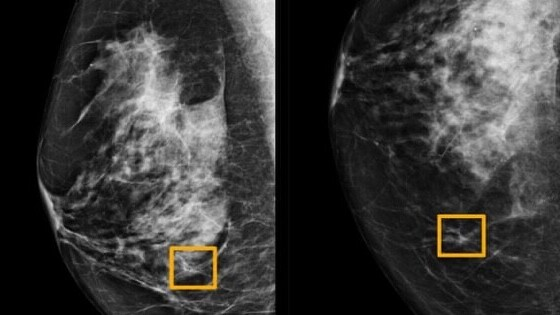 Google's new AI detects breast cancer just by scanning X-ray