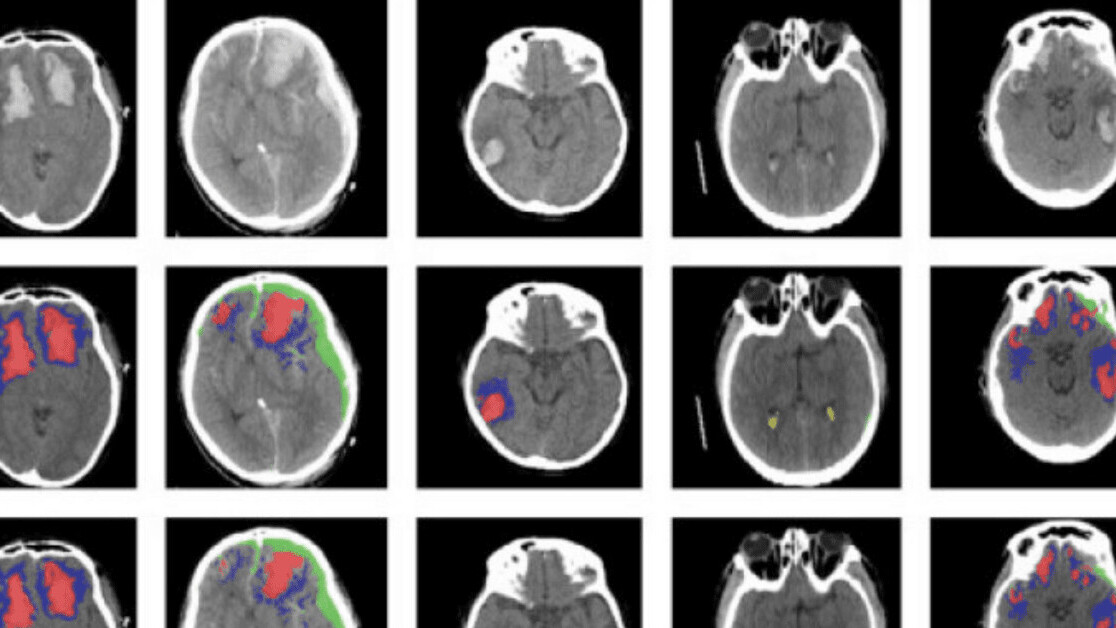This AI tool automatically identifies different types of brain injury
