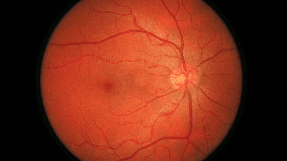 New AI from DeepMind and Google can detect a common cause of blindness