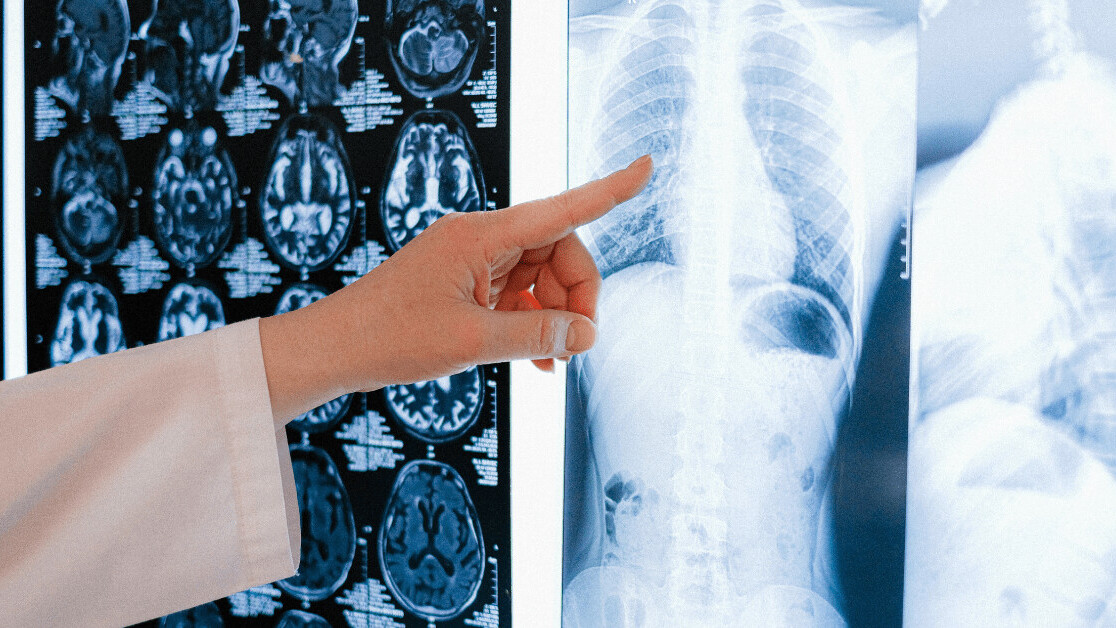 AI imaging database for COVID-19 diagnosis provided to UK hospitals