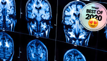 Scientists may have found the missing link between brain matter and consciousness