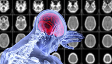 Over a third of coronavirus patients show neurological symptoms, study reports