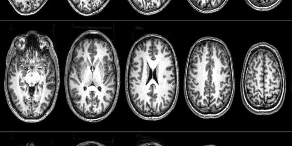 Neuroscientists scanned radicals' brains to determine what makes them turn violent