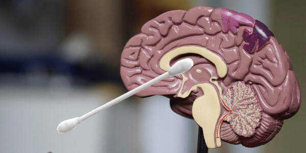 No, you can't puncture your brain with a COVID-19 swab test