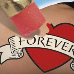Remover Tatuagem Definitiva