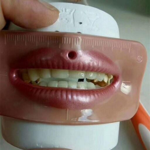 dentsma