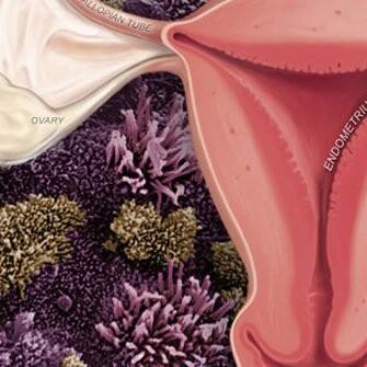 Endometriosis XYZ